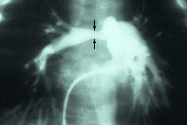X-ray angiocardiogram of right pulmonary artery showing stenosis contstriction caused by the patient's mother contracting Rubella (German Measles) during pregnancy. Photo courtesy CDC / Dr. Andre J. Lebrun